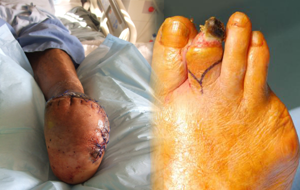 Amputated foot and toe